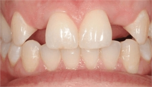 Hypodontia is missing 1 to 6 permanent or baby teeth