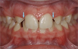 Hypodontia - the canines are erupting but the arrows show no presence of the lateral incisors