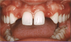 Hypodontia is a dental condition of having less teeth than normal