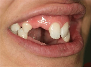 Patient with dental oligodontia - lateral view
