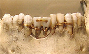 In 2500 B.C. the Egyptians used gold wire ligatures to help stabilize damaged or loose teeth.