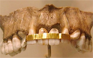 Phoenicians used gold wires to splint teeth compromised by periodontal infection and decay.