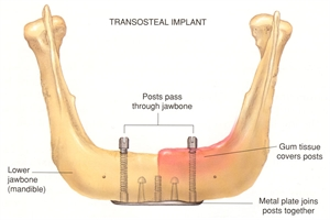 Transosteal Dental Implant