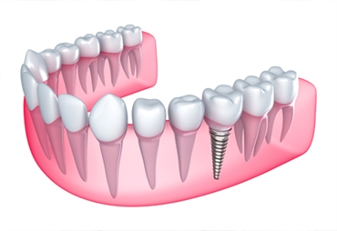 Types and benefits of Dental implants