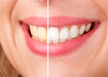 Teeth Whitening Potomac MD