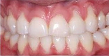 Gum disease Receding Gums treatment