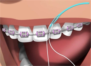 What is the difference between Superfloss, floss threaders, floss picks and dental floss?