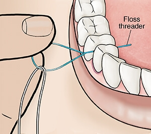 Dental floss threader