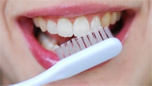 Causes and Prevention of Tooth Decay