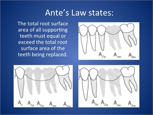 What is Ante's Law in dentistry?