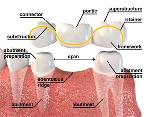 What are the terms in dental bridge - abutment, pontic, connector, dental bridge span, framework, retainer, substructure, superstructure, abutment preparation