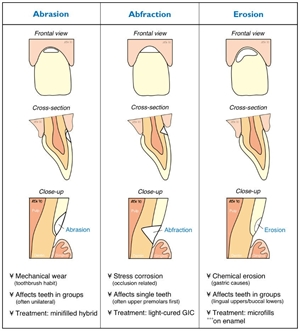 Causes, anatomy and treatment of dental abrasion, abfraction and erosion