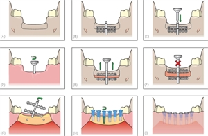 Distraction Osteogenesis technique described step-by-step. After increasing height and volume of alveolar ridge, dental implants are placed