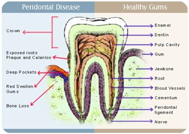 Cosmetic Gum Surgery Cost in Hyderabad India.