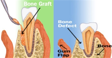 Bone Grafts Treatment Cost in Hyderabad India.