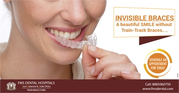 Invisible Aligners Braces Cost in Hyderabad India