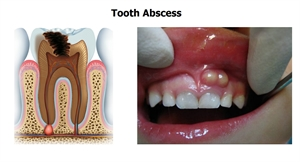 This is how a tooth abscess look like - animation and clinical photo.