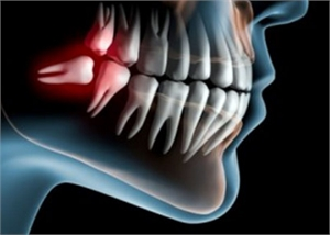 Is it safe to have all four wisdom teeth removed at once?
