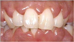 Gums Hyperplasia