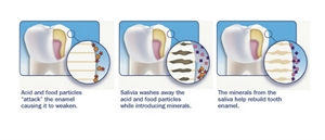 Saliva protects the teeth, increases the pH in the oral cavity and remineralizes the enamel