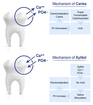 Demineralization of enamel is the first stage of tooth decay. Mechanisms of dental caries and xylitol teeth remineralization.