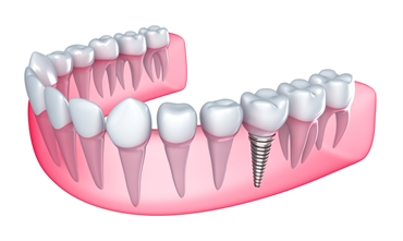 Dental Implants: Costs and Alternatives