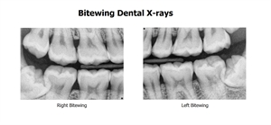 Bitewing dental x-rays