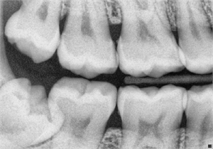 Bitewing radiographs are dental x-rays taken to detect initial phase of tooth decay in the proximal tooth surfaces.