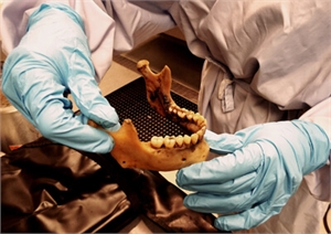 Forensic dentistry, also known as forensic odontology, recognizes victims by the signs and anatomy of teeth, oral anatomy, tongue and oral soft tissues