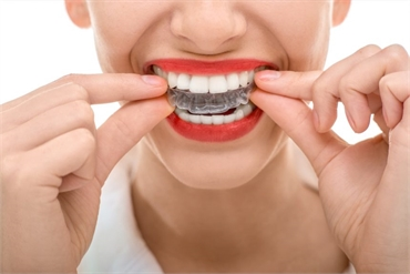 Invisalign Can Help You Achieve Faster Results and Improve Your Oral Hygiene