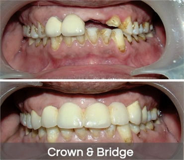 Conentional Crown and Bridge