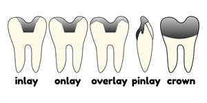 This is the difference between dental crown, dental cap, inlay, overlay, onlay and pinlay. They are all used to restore a damaged tooth but all have specifics and indications in dentistry.