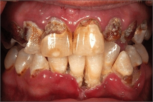 ANUG - acute necrotizing ulcerative gingivitis. It is also known as trench mouth.