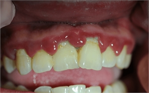 Trench mouth is also known as Vincent stomatitis. It is a treatable dental condition caused by pathogenic bacteria.
