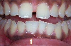 Tooth gemination in dentistry | News | Dentagama
