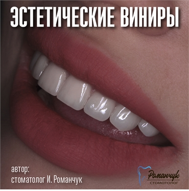 dental-veneers-10