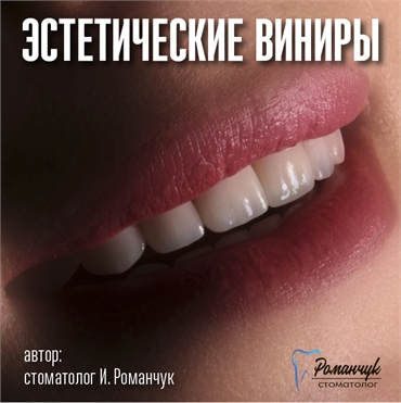 dental-veneers-6