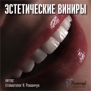 dental-veneers-1