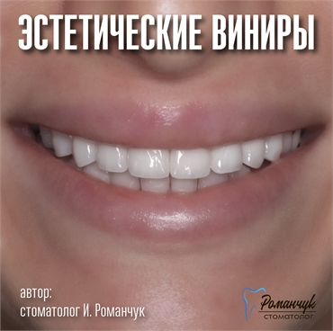 dental-veneers-11