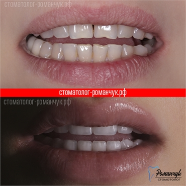 dental-veneers-case-2-1