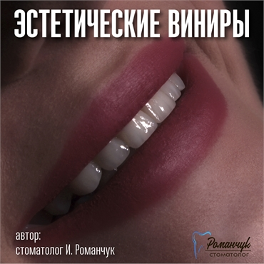 dental-veneers-7