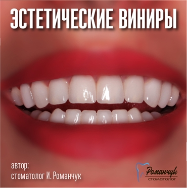 dental-veneers-9