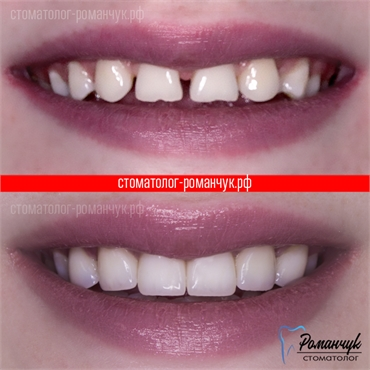 dental-veneers-1-1