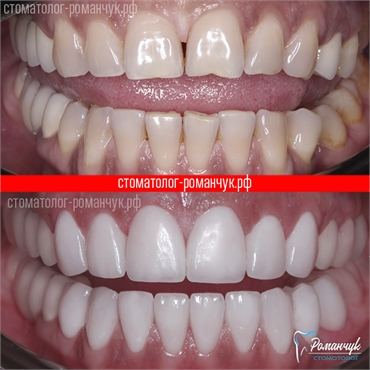 dental-veneers-case-2