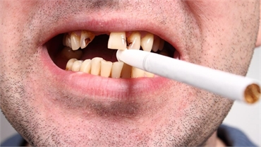 What Are the Long-Term Effects of Tobacco Products on Your Dental Health?