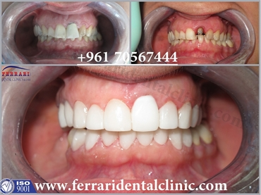 Hollywood smile with Dr Habib Zarifeh