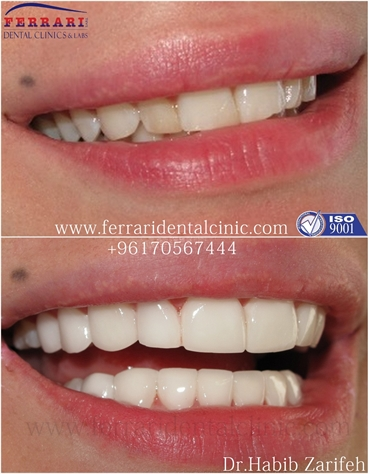 Lumineers Hollywood smile Lebanon by Dr Habib Zarifeh head of CMC Dental Division
