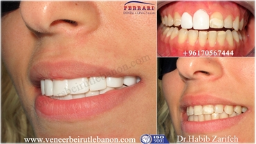 Hollywood smile Lebanon Dr Habib Zarifeh certified Lumineers dentist