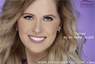Hollywood smile Beirut Lebanon by Dr.Habib Zarifeh