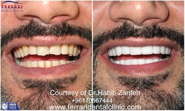 Lumineers Hollywood smile Lebanon by Dr.Habib Zarifeh head of CMC Dental Division